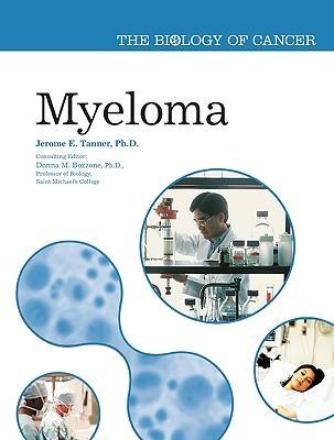 Myeloma by Jerome Edward Tanner