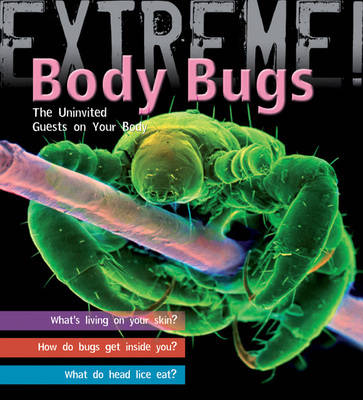 Extreme Science: Body Bugs! The Uninvited Guests on Your Body by Trevor Day
