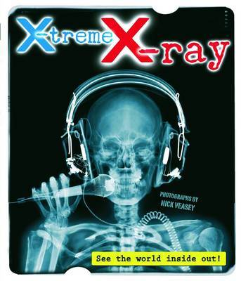 X-Treme X-Ray by