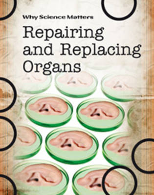Repairing and Replacing Organs by Andrew Solway