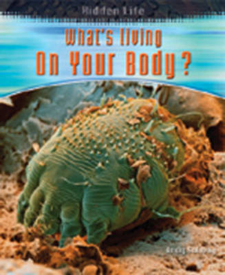 What's Living on Your Body? by Andrew Solway