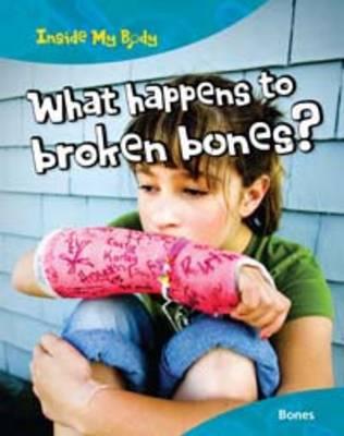 What Happens to Broken Bones? by Carol Ballard