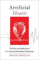 Artificial Hearts The Allure and Ambivalence of a Controversial Medical Technology by Shelley (Jason A. Hannah Chair in the History of Medicine, University of Western Ontario) McKellar