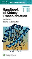 Handbook of Kidney Transplantation by Gabriel M. Danovitch