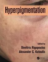 Hyperpigmentation by Dimitris Rigopoulos