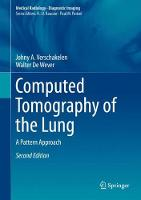 Computed Tomography of the Lung A Pattern Approach by Johny A. Verschakelen, Walter de Wever