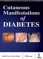 Cutaneous Manifestations of Diabetes by Cohen Sabban Emilia