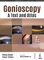 Gonioscopy: A Text and Atlas by Tanuj Dada, Talvir Sidhu