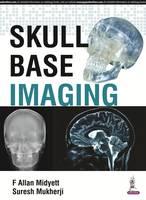 Skull Base Imaging by F. Allan Midyett, Suresh K. Mukherji