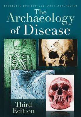 The Archaeology of Disease by Charlotte Roberts, Keith Manchester