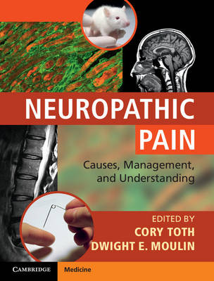 Neuropathic Pain Causes, Management and Understanding by Cory Toth