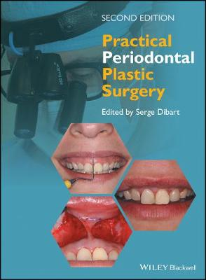Practical Periodontal Plastic Surgery, Second Edition by Serge Dibart