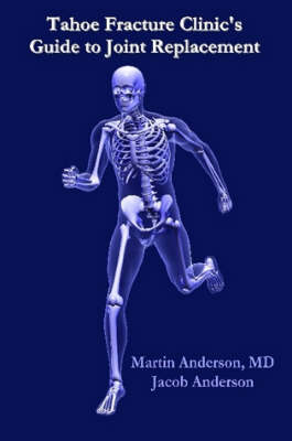 Tahoe Fracture Clinic's Guide to Joint Replacement by Martin Anderson M.D.