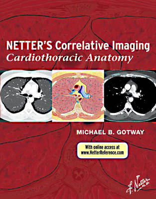 Netter's Correlative Imaging: Cardiothoracic Anatomy with Online Access at www.NetterReference.com by Michael B. Gotway