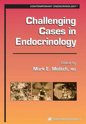 Challenging Cases in Endocrinology by Mark E. Molitch