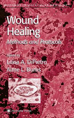 Wound Healing Methods and Protocols by Luisa A. DiPietro