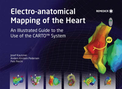 Electro-anatomical Mapping of the Heart by Josef Kautzner, Anders Kirstein Pedersen, Petr Peichl