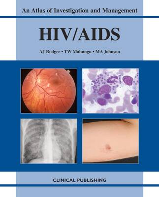 HIV/AIDS by A.J. Rodger