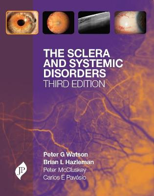 The Sclera and Systemic Disorders by Peter G. Watson, Brian L. Hazleman, Carlos E. Pavesio, Peter M. McCluskey