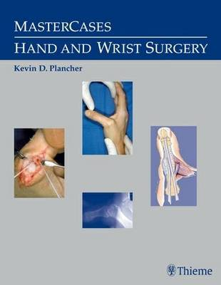 MasterCases in Hand and Wrist Surgery by Kevin D. Plancher