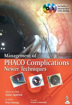 Management of Phaco Complications Newer Techniques by Amar Agarwal