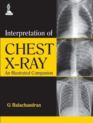 Interpretation of Chest X-Ray An Illustrated Companion by G. Balachandran