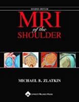 MRI of the Shoulder by Michael B. Zlatkin