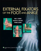 External Fixators of the Foot and Ankle by Paul, MD Cooper, Vasilios Polyzois, Thomas Zgonis