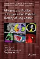Principles and Practice of Image-Guided Radiation Therapy of Lung Cancer by Jing Cai