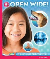 Open Wide The Ultimate Guide to Your Teeth by Susan Grigsby