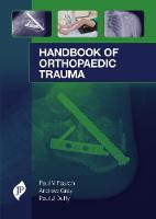 Handbook of Orthopaedic Trauma by Andrew Gray