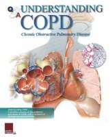 Understanding COPD Flip Chart by Scientific Publishing