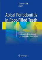 Apical Periodontitis in Root-Filled Teeth Endodontic Retreatment and Alternative Approaches by Thomas Kvist