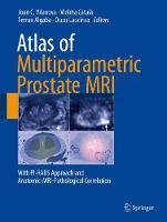Atlas of Multiparametric Prostate MRI With PI-RADS Approach and Anatomic-MRI-Pathological Correlation by Joan C. Vilanova