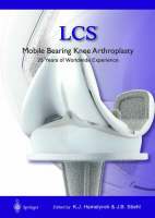Lcs Mobile Bearing Knee Arthroplasty A 25 Years Worldwide Review by Karel J. Hamelynck