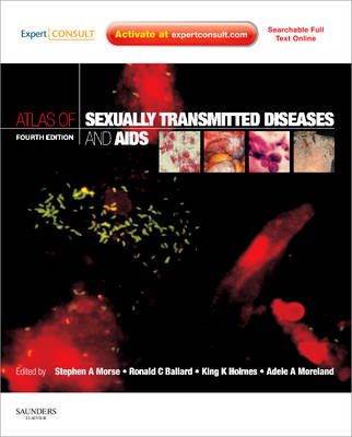 Atlas of Sexually Transmitted Diseases and AIDS Expert Consult by Stephen A. Morse, King K. Holmes, Ronald C. Ballard