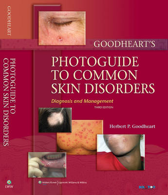 Goodheart's Photoguide to Common Skin Disorders Diagnosis and Management by Herbert P. Goodheart